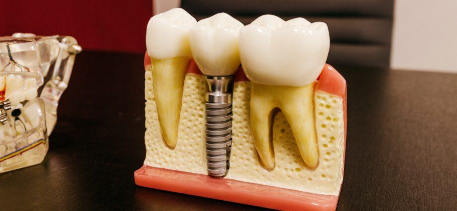 Cât costă un implant dentar
